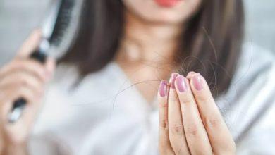乳糜泻与脱发之间的联系的照片