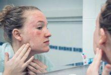 皮肤状况与乳糜泻,麸质敏感性有关的照片